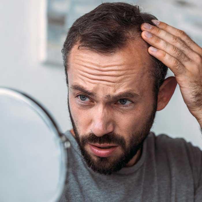 opadanje kose kod muškarca